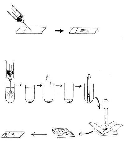 乳房病理 圖二
